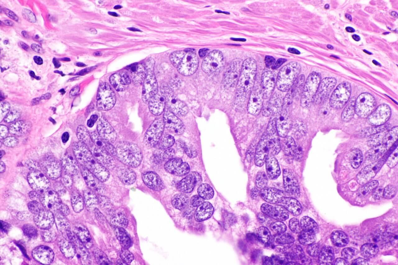 Malignant Prostate Tumor