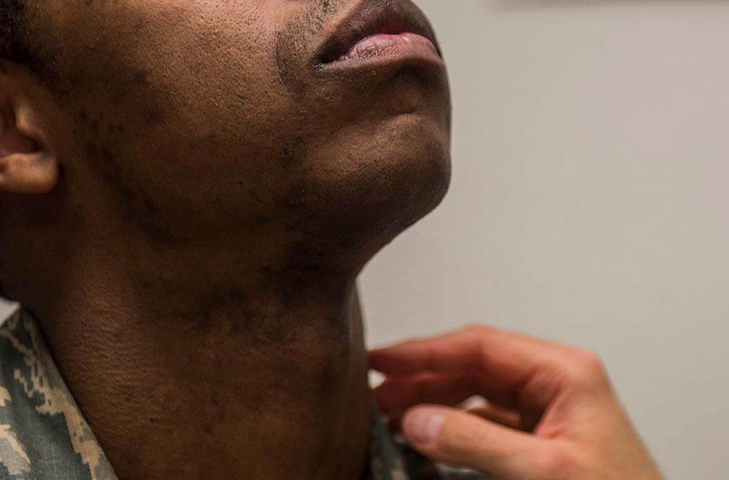 Pharyngitis – Is It Contagious?