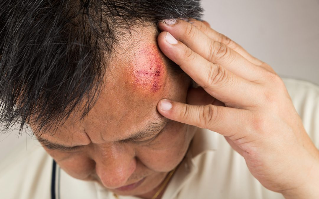 Bump On Head Cancer