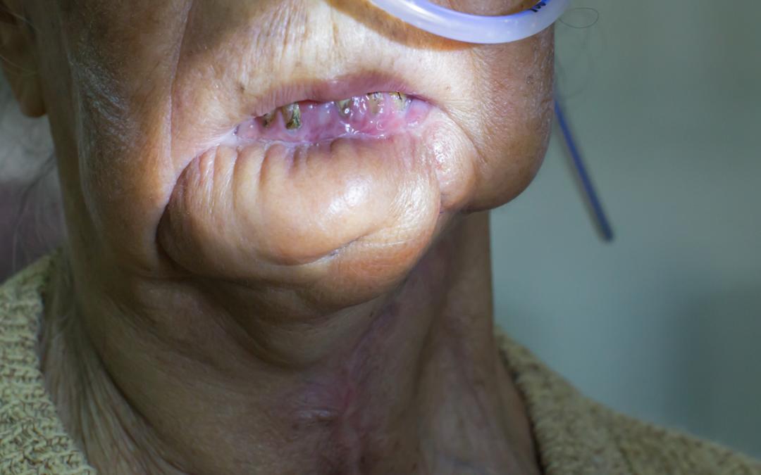 Oropharyngeal Cancer Treatment