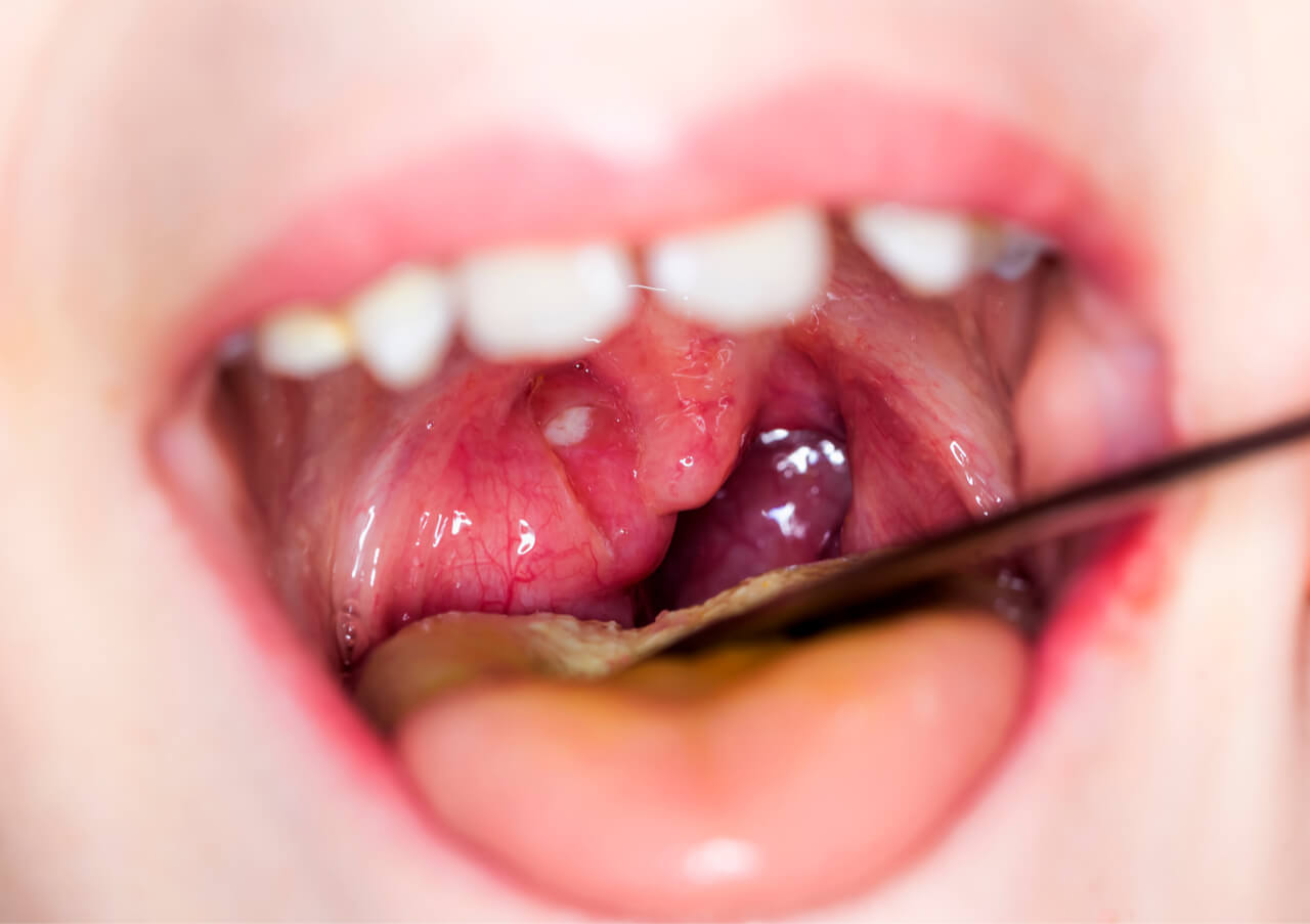 mouth infection leading to sore throat and neck pain