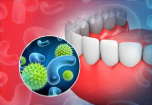 tooth bacteria could cause sore throat and neck pain
