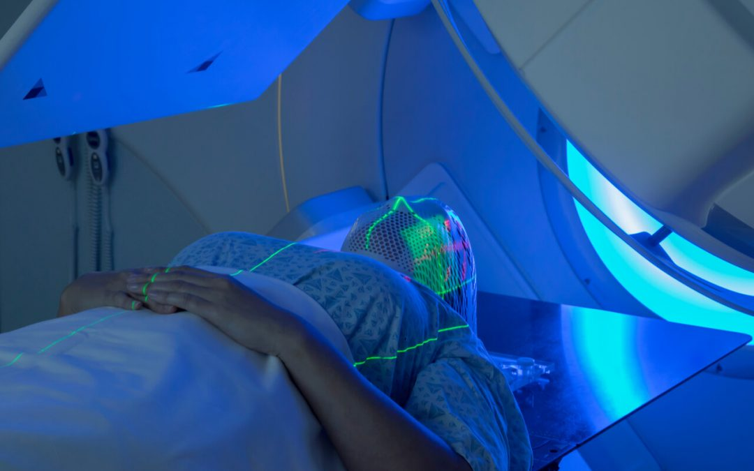 Oral side effects of radiation therapy for head and neck cancers