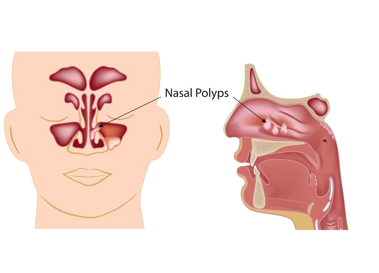 nasal polyps natural treatment