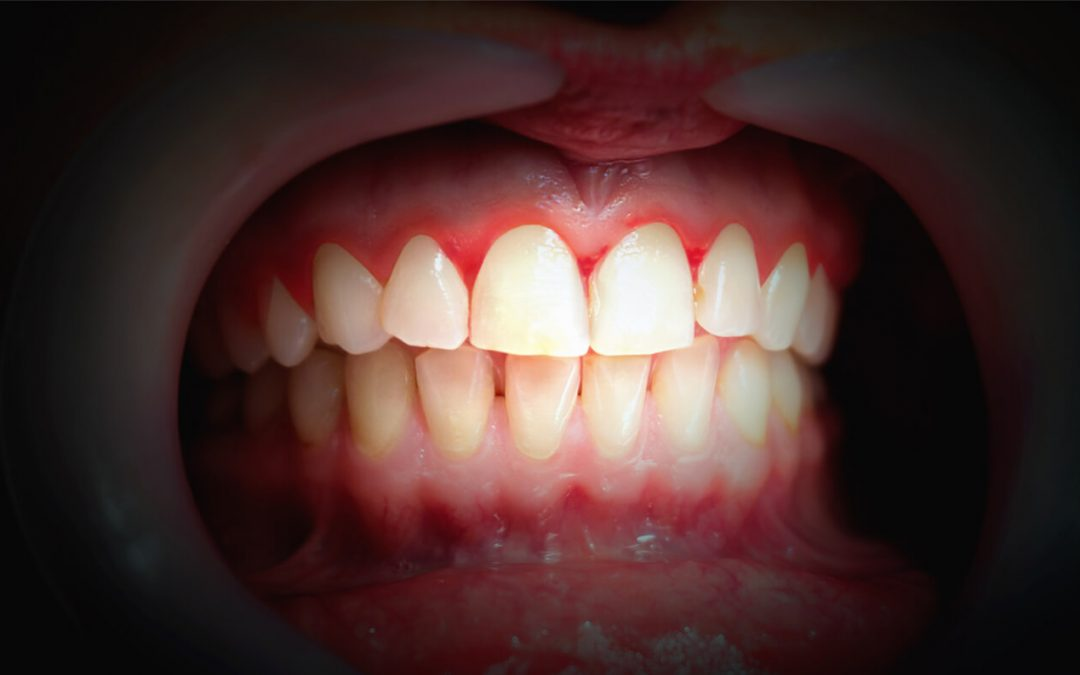 The link between gum disease and cancer