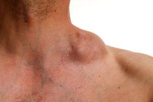 nasal tumors