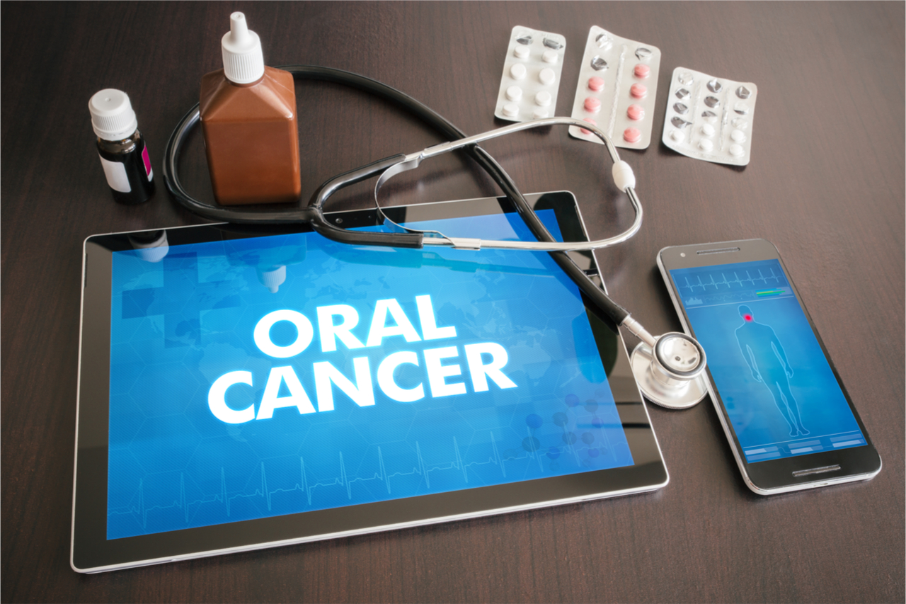 stage 3 oral cancer