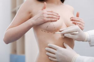 breast reconstruction surgery cost