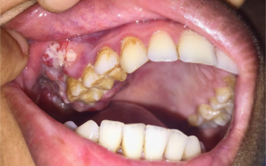 Is mouth cancer contagious?