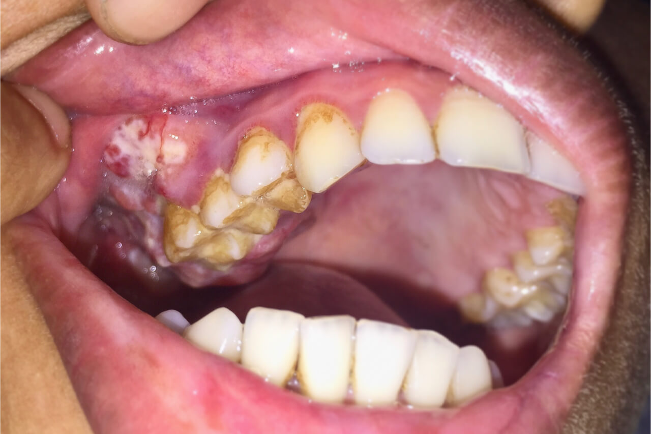 Is mouth cancer contagious