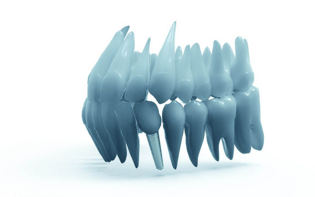 What is prosthodontics? : An overview