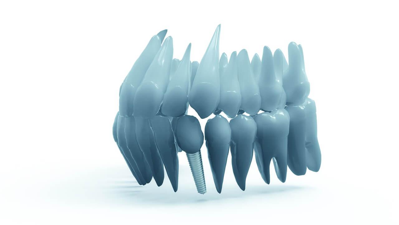 what is prosthodontics