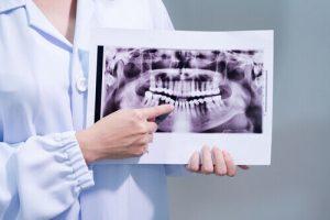 Dental Panoramic Radiograph