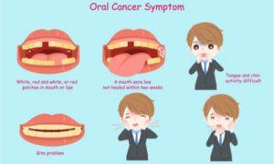 cartoon symptoms